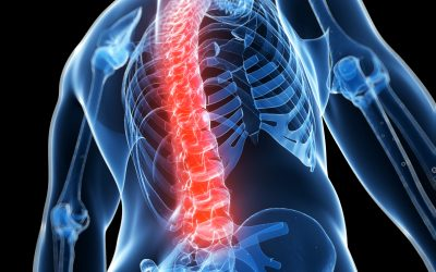 Spinal fluid aids in tracking Parkinson's progression
