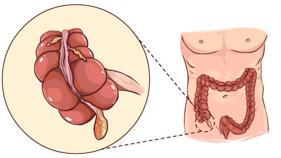 Appendix and Parkinson's risk